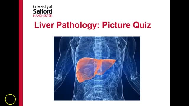 liver signs picture quiz