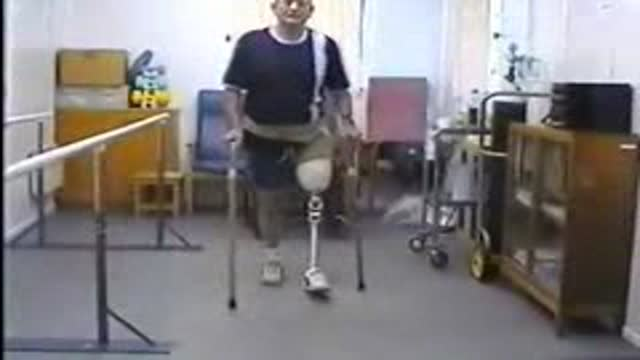 Amputee case study - progression to crutches